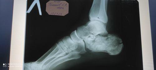 Многооскольчатый перелом пяточной кости со - фото №1