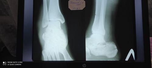 Многооскольчатый перелом пяточной кости со - фото №2