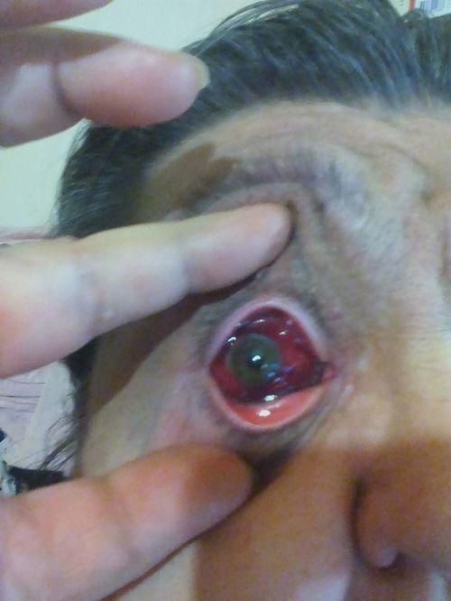 кровоизлияние в глазу что делать? - фото №1