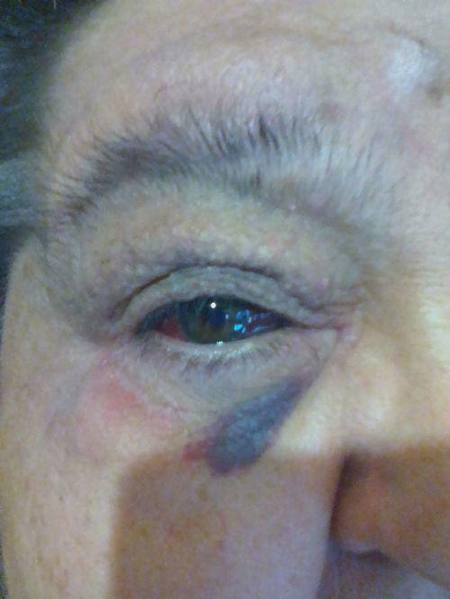кровоизлияние в глазу что делать? - фото №2