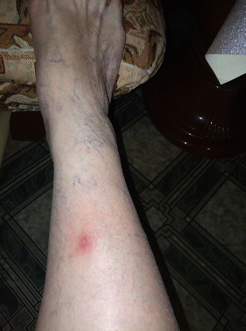 Красное пятно на ноге - фото №1
