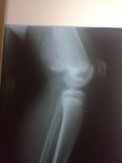 Доктор сказал что у мальчика костно-хрящевой экзостоз на основании снимка - фото №1