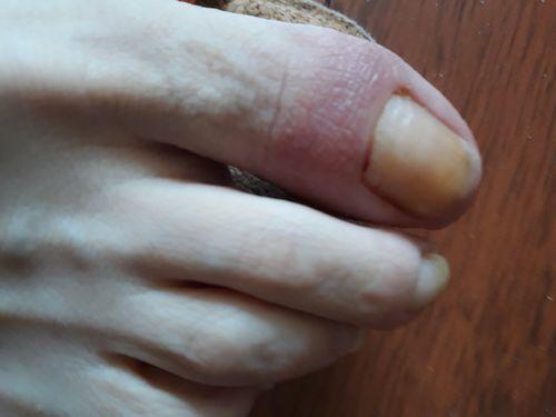 Паранихия большого  пальца стопы, стафилококк луджеденис - фото №1