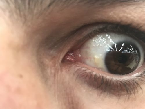 Желтое пятно в глазу похожее на гнойник - фото №1