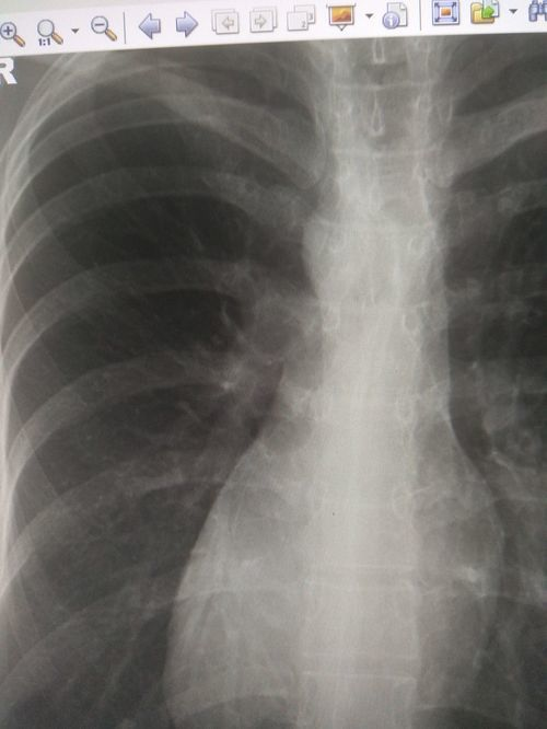 Туберкулёз или рентгенолог ошибся ? - фото №1