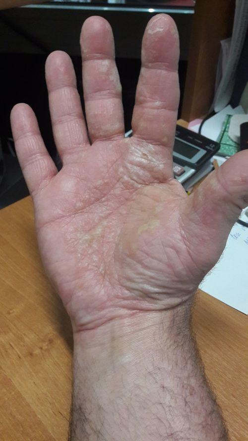 Добрый день. Обращался В УрНИИ дерматологии и иммунопатологии буквально 9 дней назад. Диагноз экзема. - фото №1