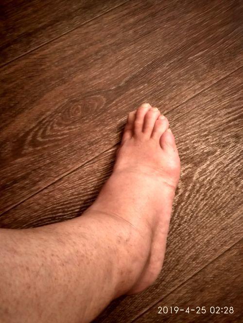 Очень отекают ноги около лодыжек,от пальцев ивыше к коленям,но чем выше, тем отек меньше..Лицо отекает тоже.хотя принимаю ко дальневу и диакарб. - фото №1