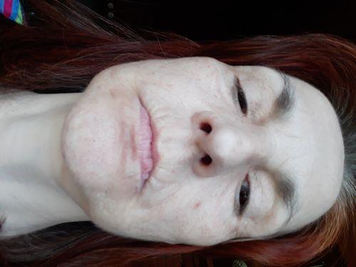 Белая кожа под нижней губой - фото №1
