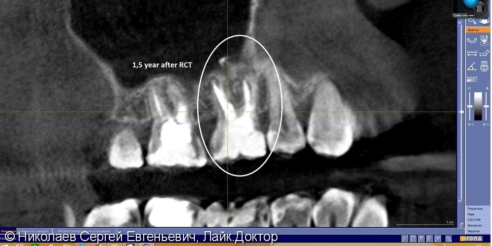 Повторное эндодонтическое лечение 16 зуба, перелечивание каналов зуба до и после - фото №11