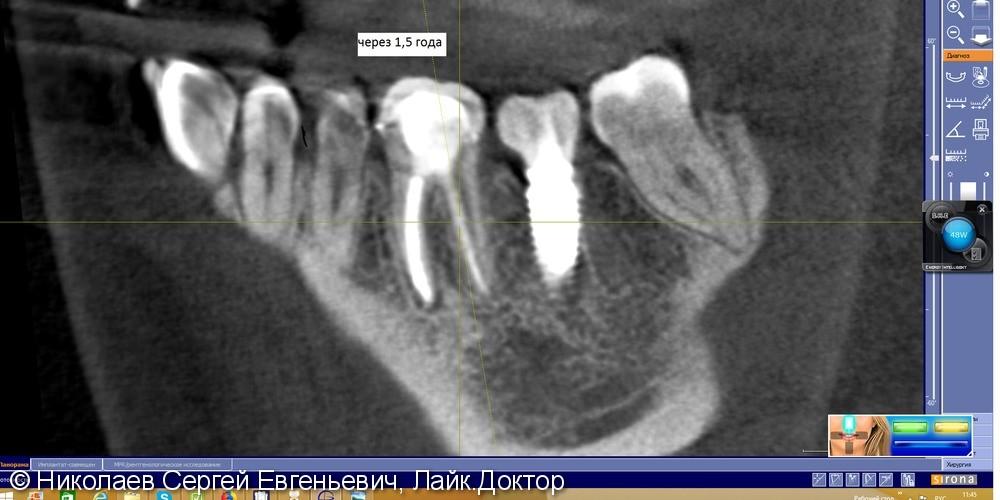 Повтороное эндодонтическое лечение 36 при подготовке к протезированию - фото №6