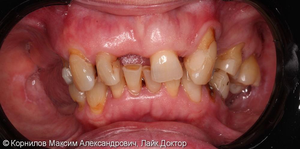 Протезирование Все на 4-х имплантах - фото №1