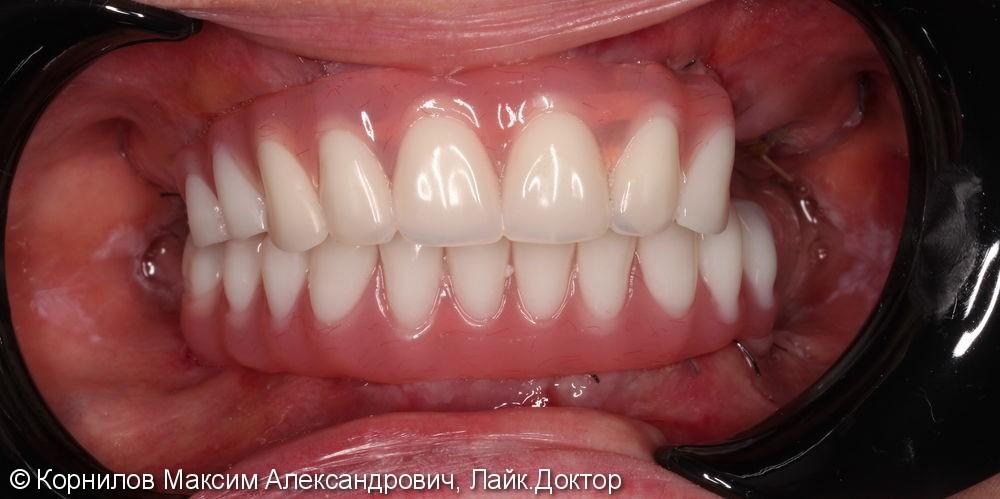 Протезирование Все на 4-х имплантах - фото №4