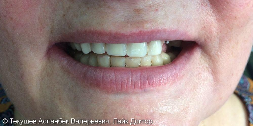 Протезирование верхней челюсти - фото №1