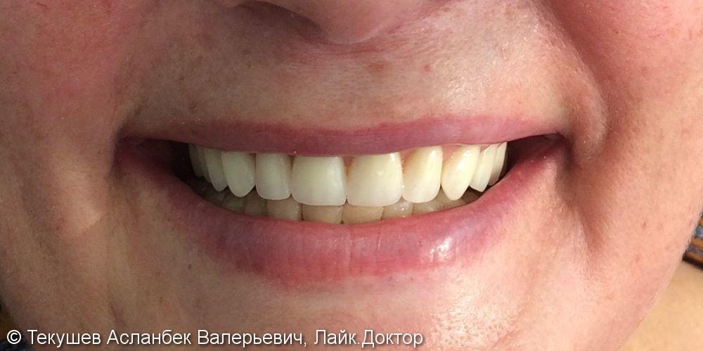 Протезирование верхней челюсти - фото №2