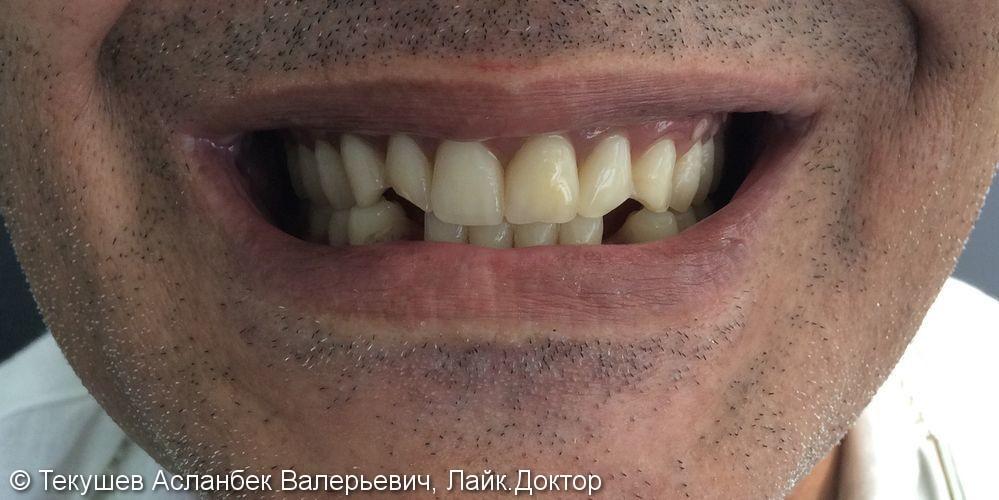 Протезирование полными съемными протезами, результат до и после - фото №1