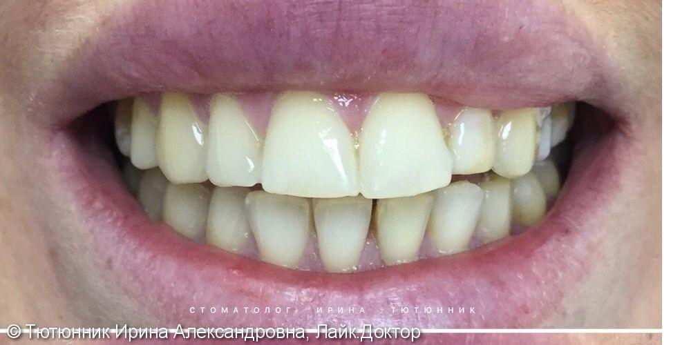 Результат отбеливания зубов Philips Zoom 4 - фото №1