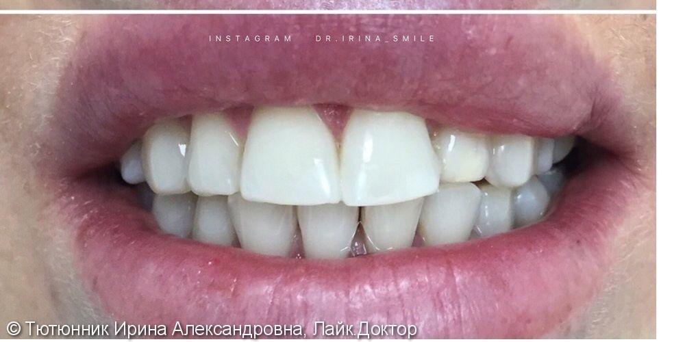 Результат отбеливания зубов Philips Zoom 4 - фото №2