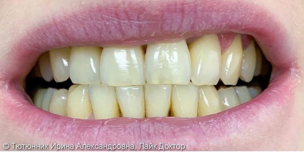Отбеливание зубов Philips Zoom 4 - фото №1