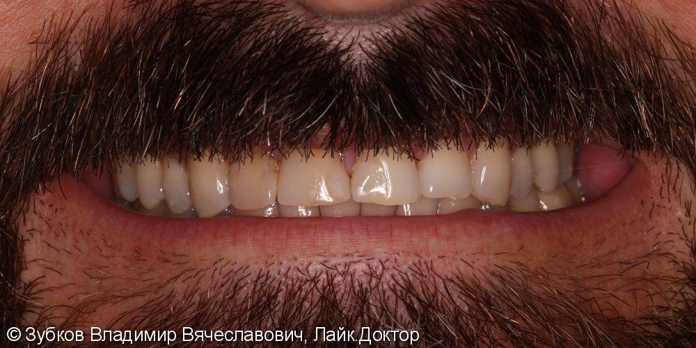 Нарушение эстетики улыбки вследствии стираемости передних зубов - фото №1