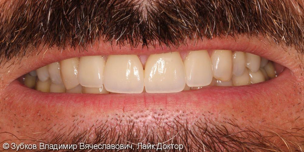 Нарушение эстетики улыбки вследствии стираемости передних зубов - фото №30