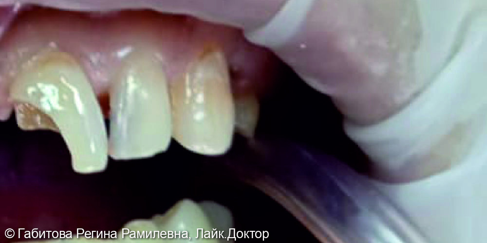 Восстановление центрального переднего зуба - фото №1