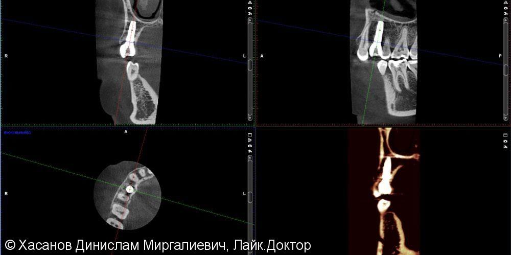 одномоментная имплантация - фото №4