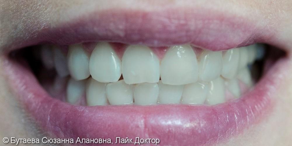 Отбеливание зубов  по технологии ZOOM - фото №1