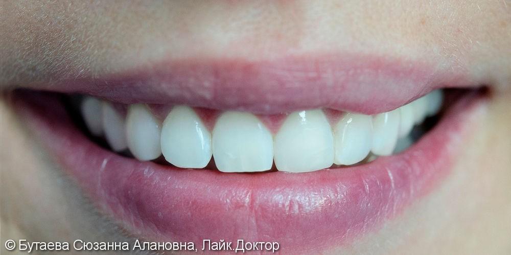 Отбеливание зубов  по технологии ZOOM - фото №2