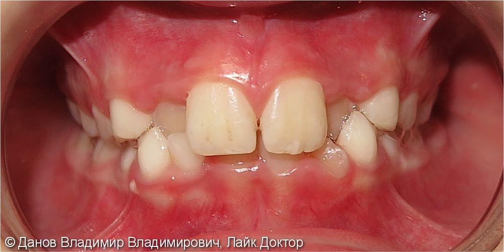 небное прорезывание и обратное перекрытие латеральных резцов верхней челюсти - фото №1