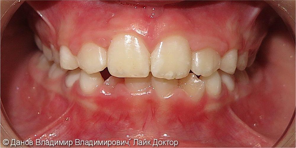 небное прорезывание и обратное перекрытие латеральных резцов верхней челюсти - фото №2
