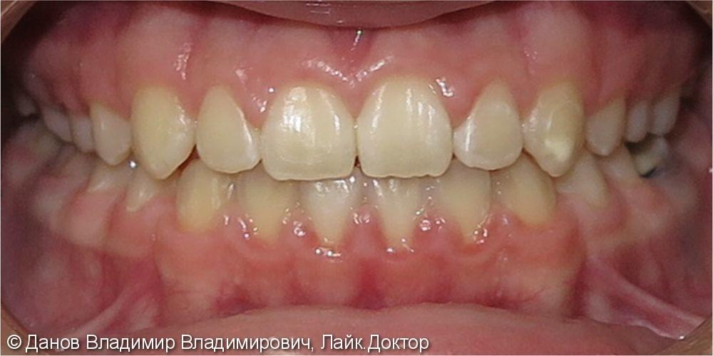 Лечение открытого прикуса брекетами - фото №4