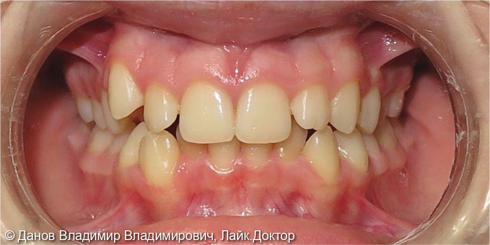 лечение скученного положения зубов - фото №1