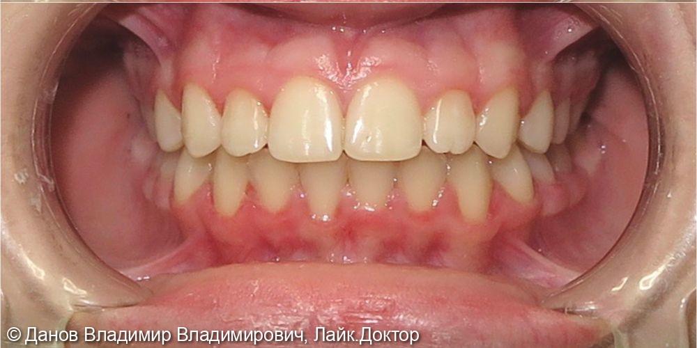 лечение скученного положения зубов - фото №2