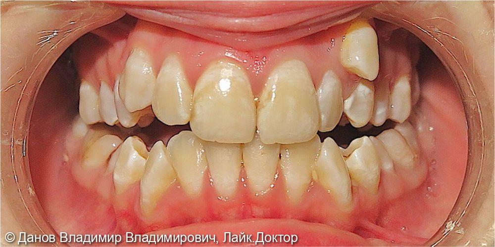 лечение двустороннего букального прикуса - фото №1