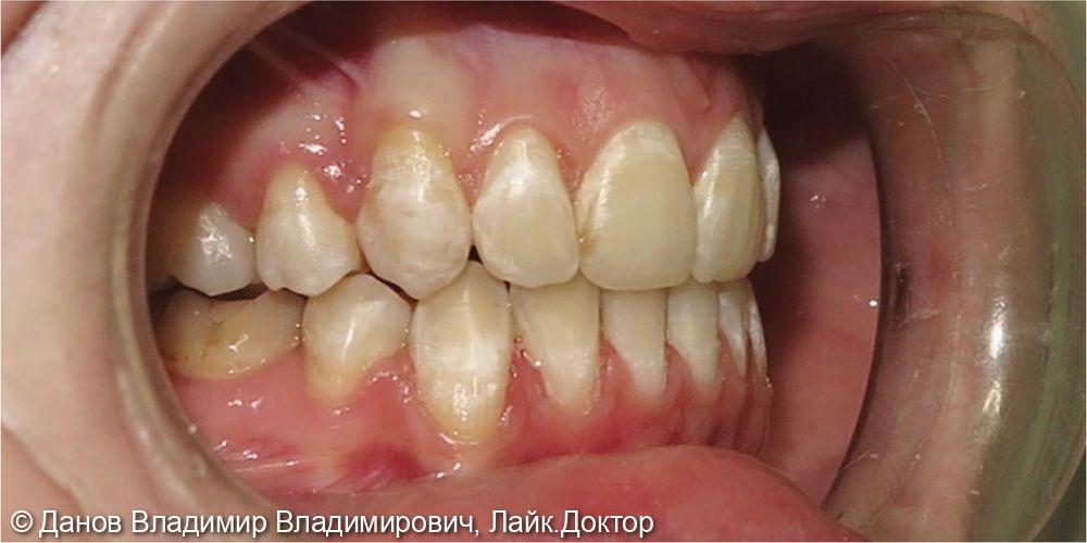 лечение двустороннего букального прикуса - фото №4