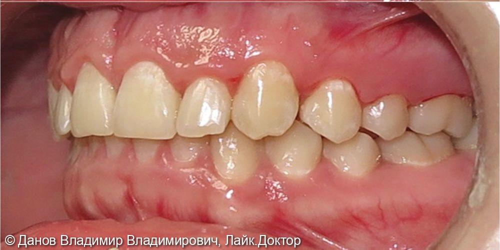 небное прорезывание 23 зуба - фото №4
