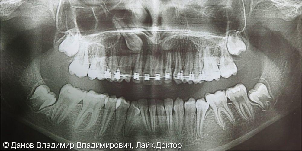 ретенция 13 зуба - фото №1