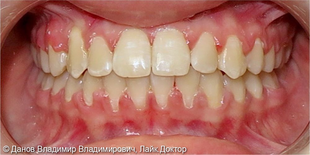ретенция 13 зуба - фото №5