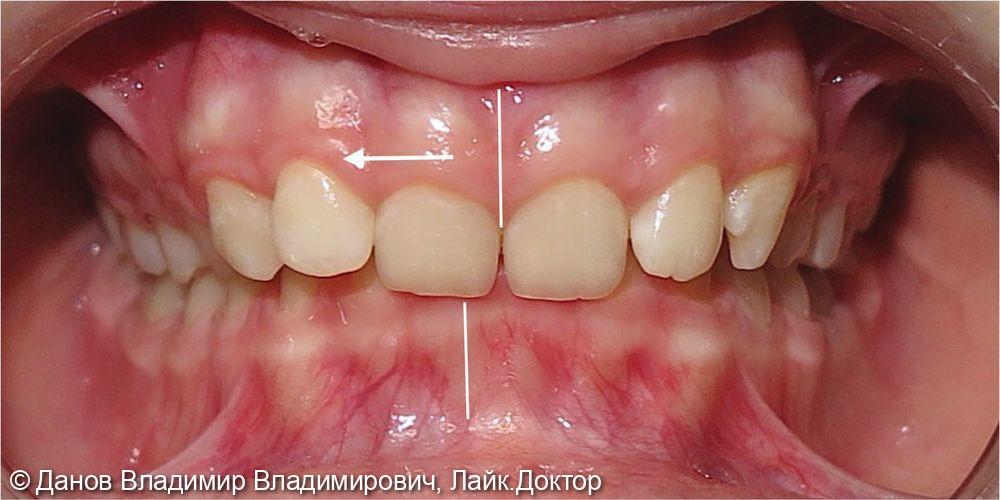 лечение глубокого прикуса и асимметрии центральной резцовой линии - фото №1