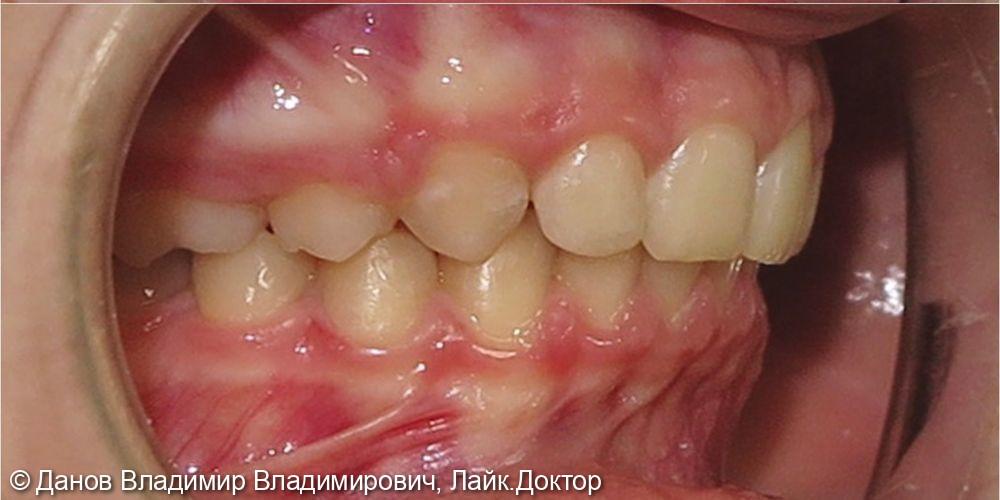 лечение глубокого прикуса и асимметрии центральной резцовой линии - фото №4