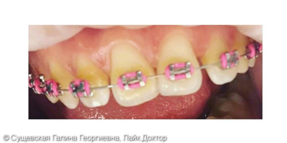 Профессиональная гигиена зубов с брекетами, до и после - фото №1