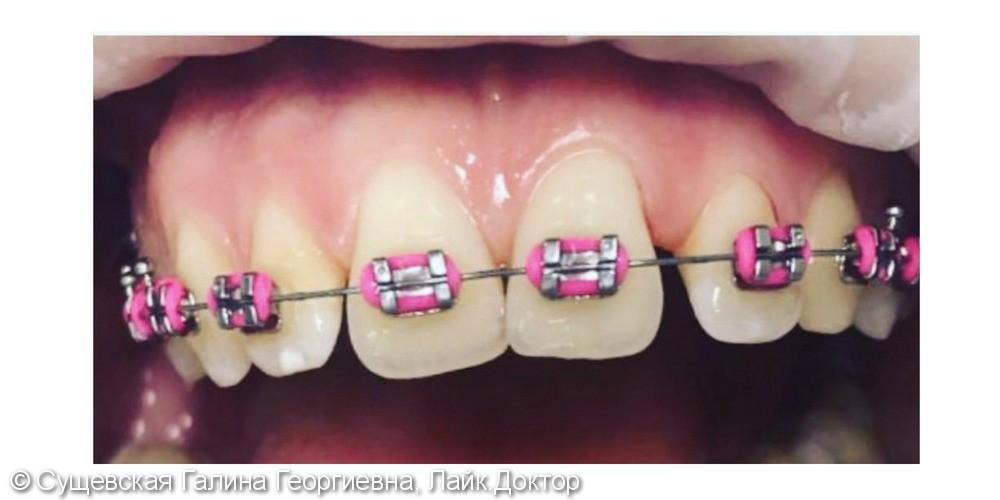 Профессиональная гигиена зубов с брекетами, до и после - фото №2