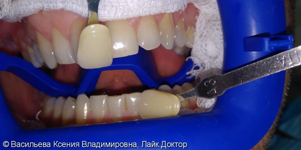 Отбеливание зубов Opalescence, из B2 в B1 - фото №1