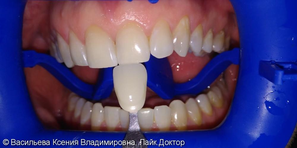 Отбеливание зубов Opalescence, из B2 в B1 - фото №2