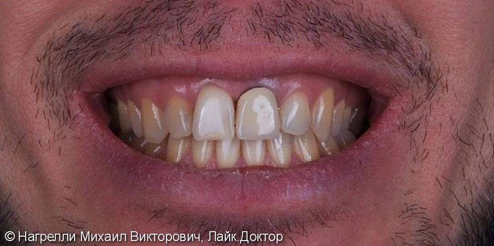 Цельнокерамические коронки Emax на передние зубы - фото №1