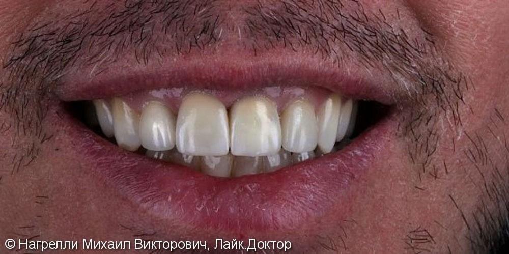 Цельнокерамические коронки Emax на передние зубы - фото №2