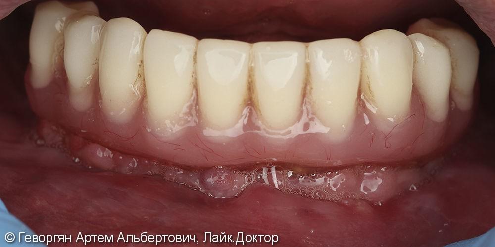 Лечение полной адентии (полное отсутствие зубов) нижней челюсти - фото №2