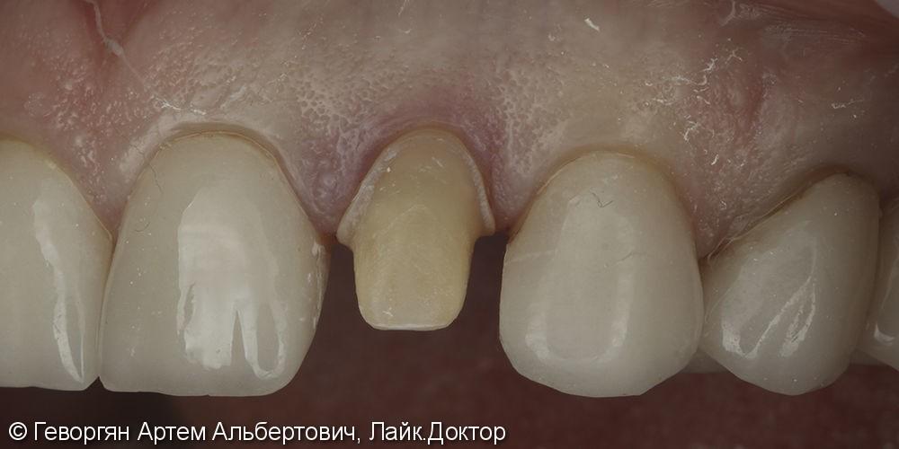 Восстановление бокового резца цельнокерамической коронкой (E.max) - фото №1
