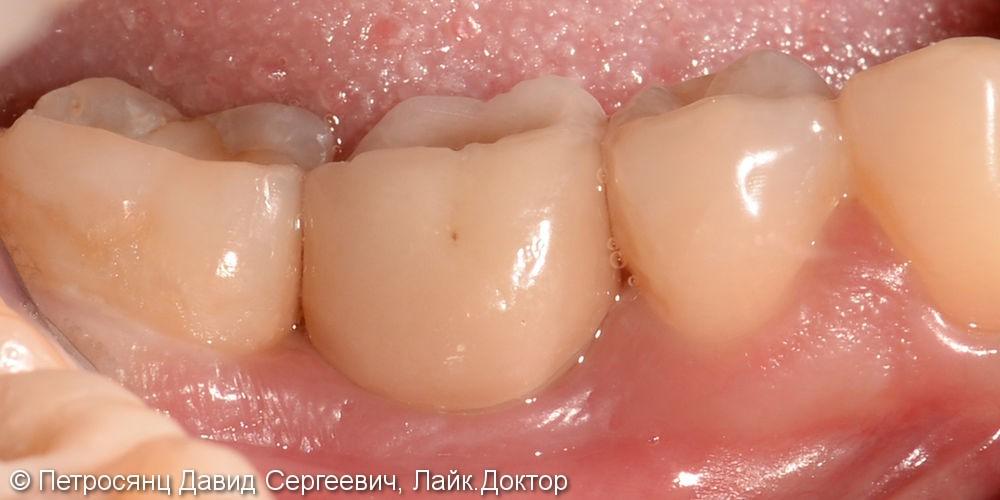 Постановка имплантата на месте утраченного зуба нижней челюсти - фото №3