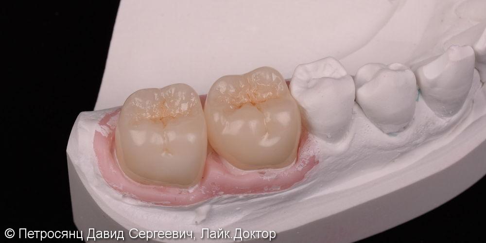 Восстановление зубов цельно-керамическими коронками emax - фото №4